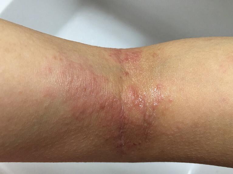 アトピー性皮膚炎の症状