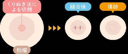 粉瘤・脂肪腫のくり抜き法|枚方市のすわ診療所