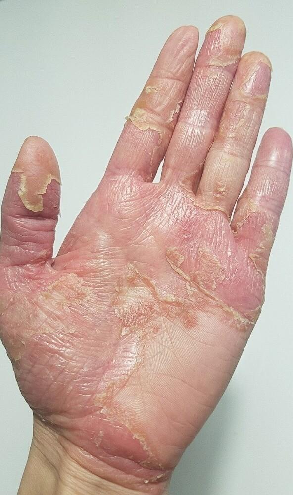 湿疹・皮膚炎の治療を行う皮膚科は、枚方市にあるすわ診療所