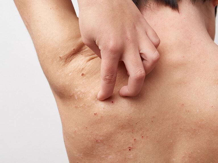 蕁麻疹の治療を行う枚方市の皮膚科は、すわ診療所