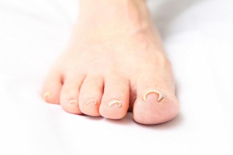 陥入爪・巻き爪|枚方市御殿山駅にある皮膚科、すわ診療所