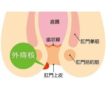 切れ痔|枚方市のすわ診療所による痔の日帰り手術3